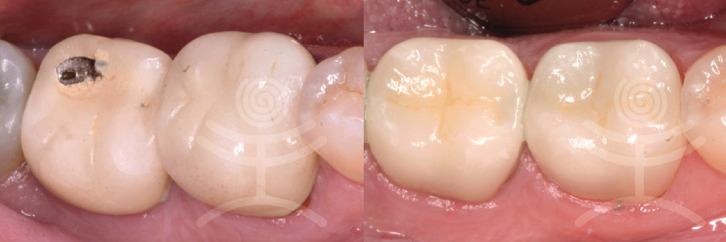 Cerec inlay | Klinika Mediestetik