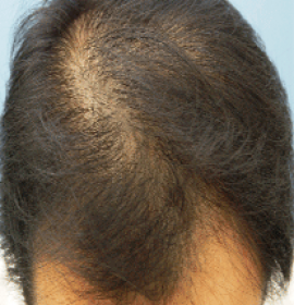 RegenPlasma: Get Rid of Hair Loss on a Cellular Level | Klinika Mediestetik