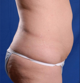 Injection Lipolysis and Celluslim Lipomodelling | Klinika Mediestetik