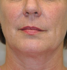 Non-invasive lifting Thermage   mediest cz