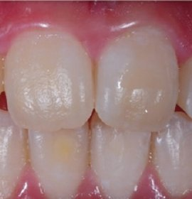ICON: Caries Treatment without Drilling | Klinika Mediestetik