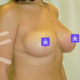 Breast plastic surgery: Reduction | Klinika Mediestetik