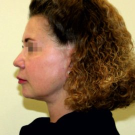 Facelift and neck lift | Klinika Mediestetik