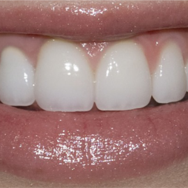 Professional Teeth Whitening | Klinika Mediestetik