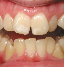 Orthodontists and orthodontic treatment | Klinika Mediestetik